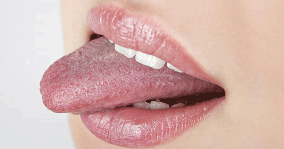 Bitten Lip or Tongue